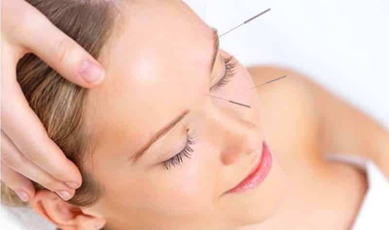 Acupuntura cosmética para el rostro