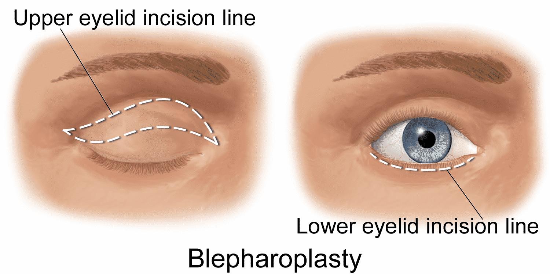 La blefaroplastia y sus resultados