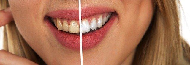 El cuidado de los dientes con un blanqueamiento dental